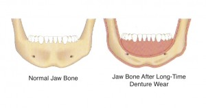 Healthy Jaw Bone Vs Bone Loss From Wearing Dentures